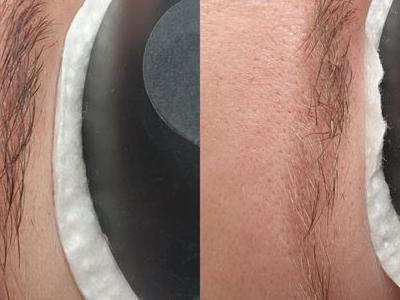 usuwanie makijażu 3