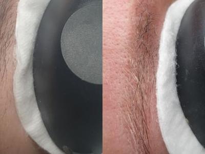 usuwanie makijażu 5