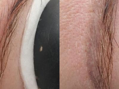 usuwanie makijażu 6