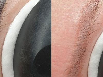 usuwanie makijażu 7