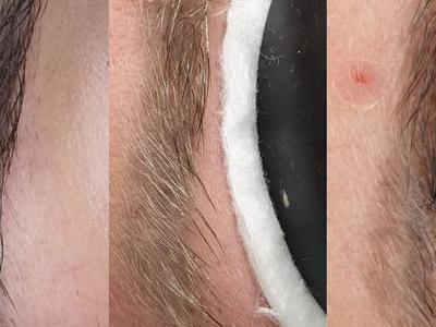 usuwanie makijażu 8